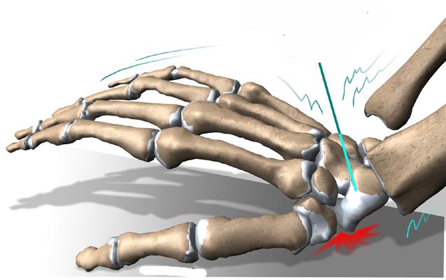 Fisioterapia na fratura de escafóide